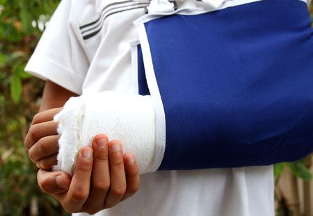 dislocation: close up of a boys arm with cast and sling Stock Photo