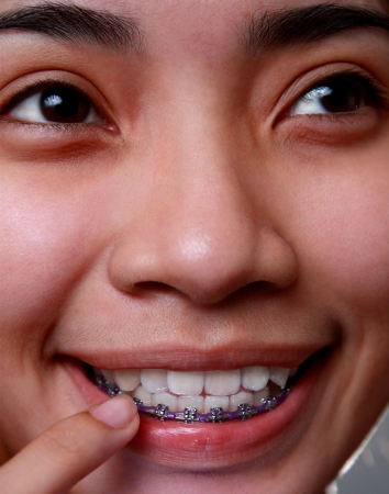 smiling young asian lady with dental brace