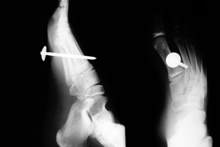 puncture: X-ray picture of a foot punctured by a nail