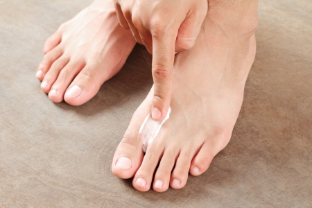 foot fungus: Applying a cream for athletes foot treatment.Close up.