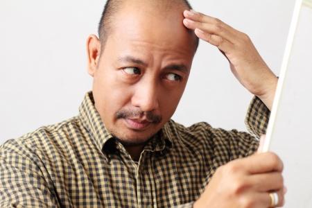 hair loss: Bald man checking his head in the mirror.