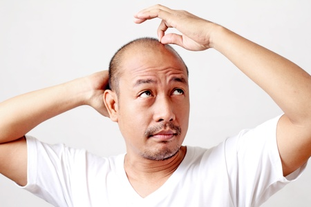 scalp: Picture of an adult bald asian male.