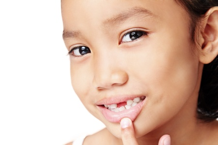 innocense: Close up of a cute girl showing a missing teeth. Stock Photo