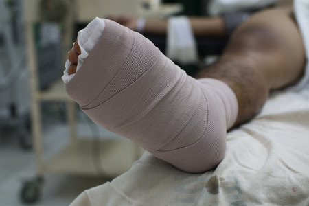 Close up view of a diabetic foot with bandage after surgery. 版權商用圖片