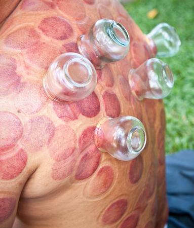 Die Schröpfen-Therapie ist eine alte Form der chinesischen Alternativmedizin in Ho Chi Minh, Vietnam.