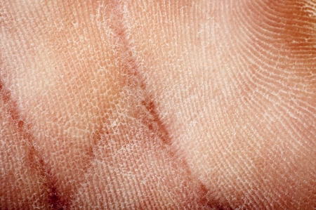 an image of human dried skin photo