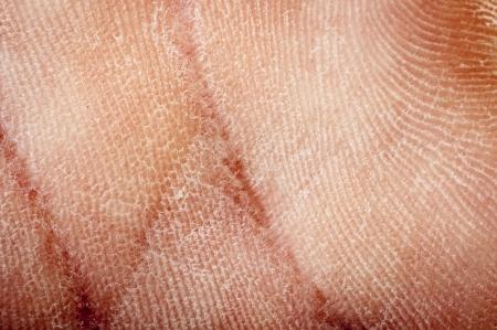 een beeld van de menselijke gedroogde huid