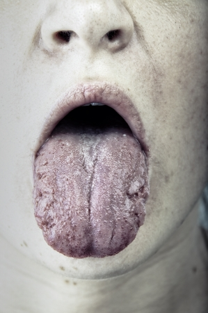 an image of sick women showing her tongue Stock Photo - 17425299