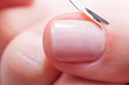 an image of girl cuts the skin at the nail photo