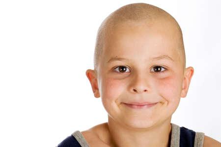 calvo: Muchacho joven feliz con una cabeza calva