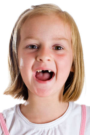 sweet tooth: child missing two fron teeth