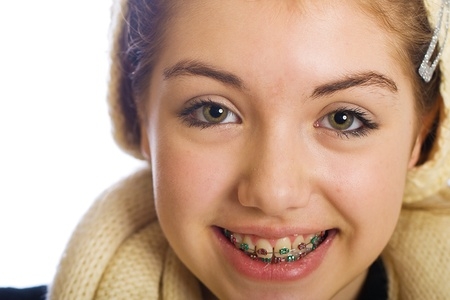 young teenager with braces and a happy smile photo