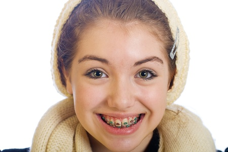 cute braces: young teenager with braces and a happy smile