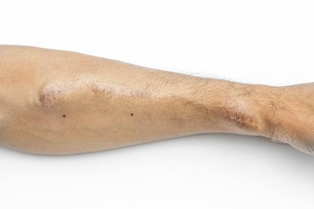 腎不全患者の血液透析血管の腕