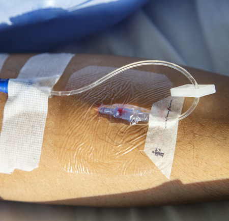 iv: IV needle on patient arm for medicine injection after surgery