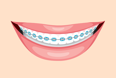 braces: Beautiful Smile With Teeth Braces, Medical, Dentistry, Hospital, Checkup, Patient, Hygiene, Healthy, Treatment