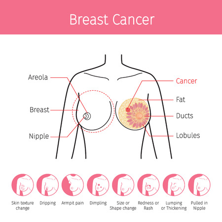 Illustration Of Female Human Breast, Outline And Breast Cancer Symptom Icons, Mammary, Boob, Body, Organs, Physical, Sickness, Health  イラスト・ベクター素材