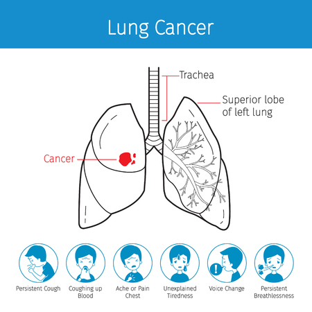 Illustration Of Human Lungs, Outline And Lung Cancer Symptoms Icons, Physiology, Sickness, Medical Profession, Morphology, Body, Organs, Health