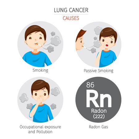Man met longkanker Oorzaken, fysiologie, ziekte, medisch beroep, morfologie, lichaam, organen, gezondheid Stock Illustratie