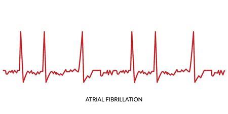 ECG Heartbeat Line. Electrocardiogram vector illustration. Atrial Fibrillation