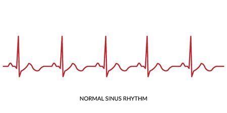 ECG Heartbeat Line. Electrocardiogram vector illustration. Normal Sinus Rhythm