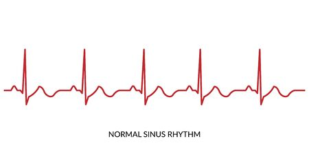 ECG Heartbeat Line. Electrocardiogram vector illustration. Normal Sinus Rhythm