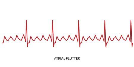 ECG Heartbeat Line. Electrocardiogram vector illustration. Atrial Flutter