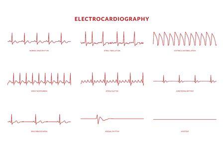 Moniteur d'électrocardiographie Heartbeat Line. vecteur EPS10 Illustration