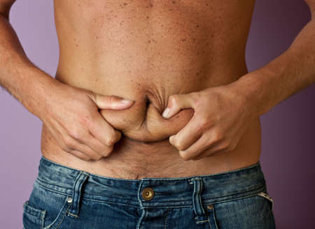 cellulite: La grasa del vientre del hombre en sus manos en primer plano