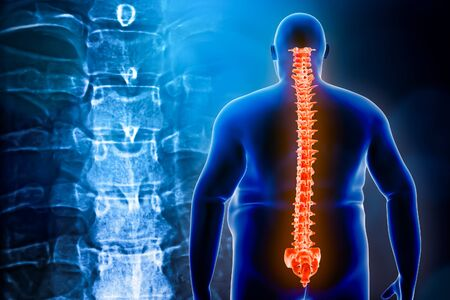 Back view of an obese man with its spine or backbone and vertebrae x-ray in the background. Overweight and back injury 3d rendering illustration. Backache, pain, healhcare and medical concepts.