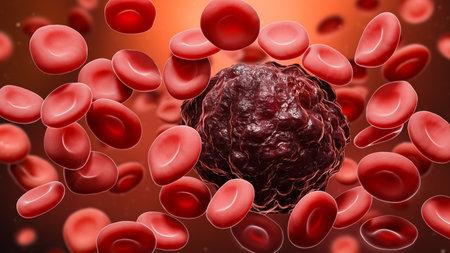 Cancer cell amidst red blood cells 3D rendering illustration. Oncology, cancerology, metastasis, medicine, microbiology, science, illness, health concepts. Banque d'images