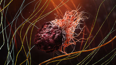 Cancer or tumor cell within fibrous tissue close-up 3D rendering illustration. Carcinoma, lymphoma, oncology, medicine, science, microbiology, cancerous pathology, health concepts.