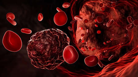 Cancer cell or cancerous tumor amidst flowing red blood cells in a blood vessel, artery or vein 3D rendering illustration. Banque d'images