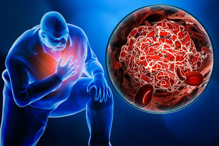 Obese or overweight man suffering a heart attack or a pulmonary embolism with a close-up image of a blood clot 3D rendering illustration.