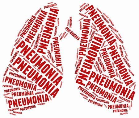 Word cloud illustration related to pneumonia. illustration
