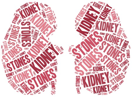 kidney stones: Kidney stones. Stock Photo