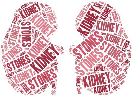 renal stone: Kidney stones. Stock Photo