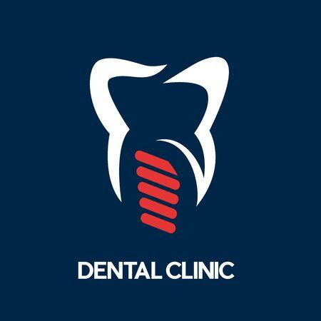 Impianto dentale astratto vettoriale, viti e dente dal dentista