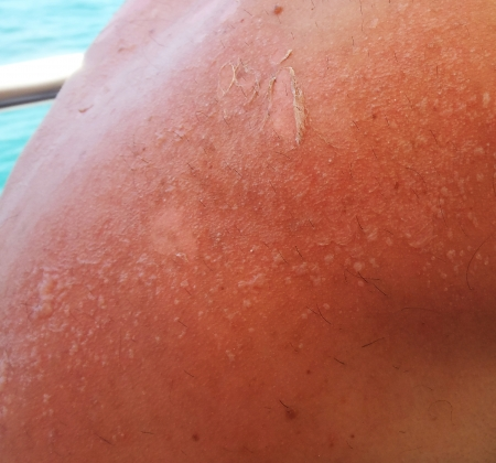 Blisters on a back that appeared four days after a sunburn