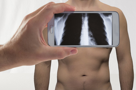radiographic: a man and his specular imaging radiographic view through the smart phone