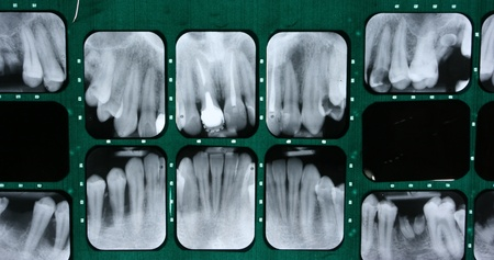 X-ray of human teeth Stock Photo