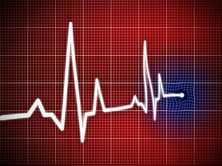 Cardiogram illustration with grid background illustration