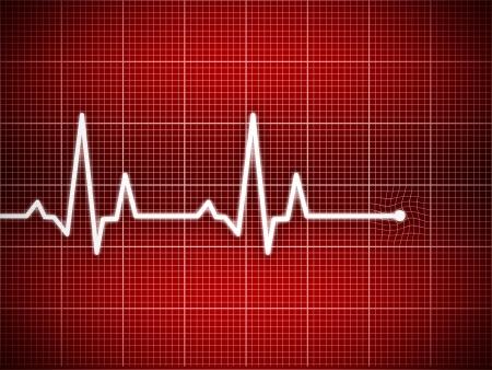 Illustration de cardiogramme avec fond de grille