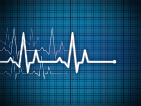 grid background: Cardiogram illustration with grid background