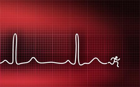 Cardiogramme. Fuir crise cardiaque Banque d'images