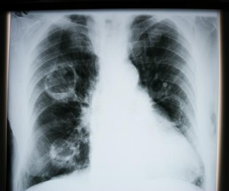 lungenkrebs: X-ray des menschlichen Lunge