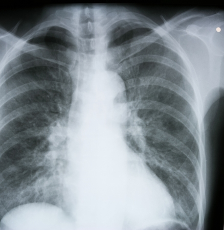 X-ray of human lungs Stock Photo - 13910488