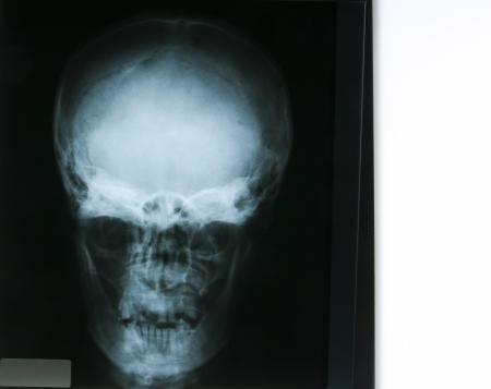 X-ray of human teeth Stock Photo - 14350193
