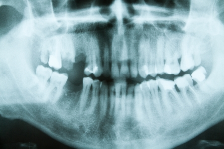 Panoramic dental X-Ray, all teeth in view Stock Photo - 17343771