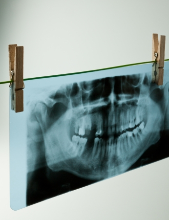 Panoramic dental X-Ray, all teeth in view Stock Photo - 17343763